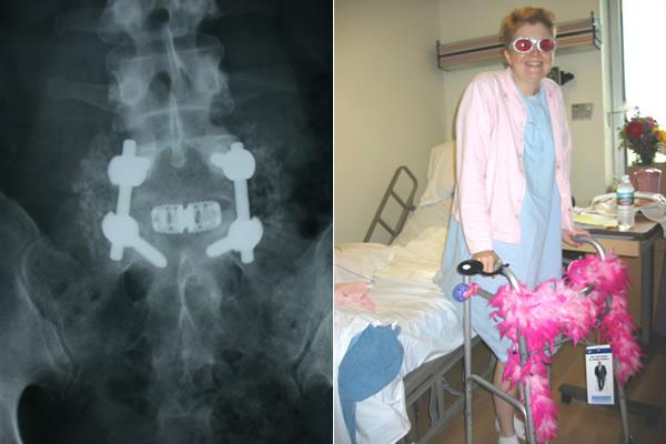 Post back surgery